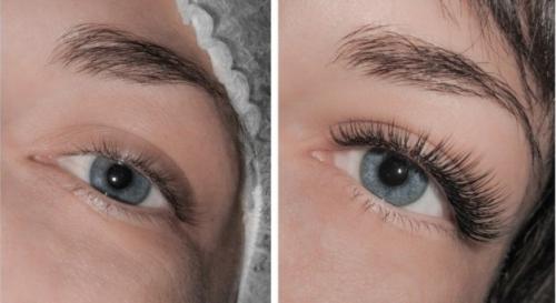 До и после процедуры наращивания